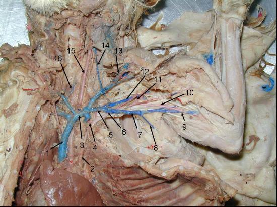 Lumbar Artery Cat