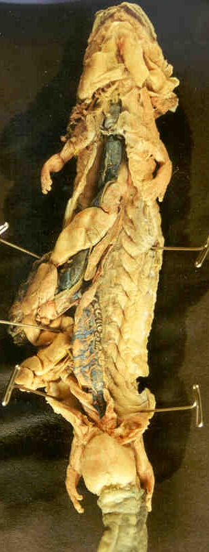 Necturus Male Urogenital System